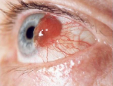 Меланома сетчатки глаза